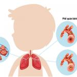 Viêm phế quản ở trẻ em có thể dẫn tới viêm phổi và các biến chứng