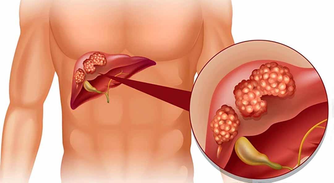 Bệnh viêm gan A lây nhiễm thông qua đường tiêu hóa