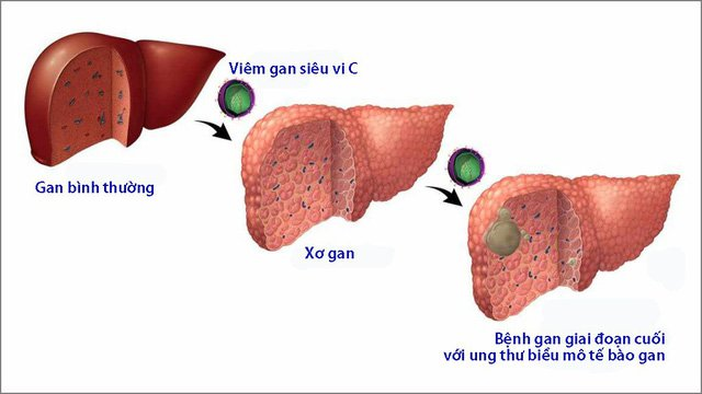 Viêm gan C có thể gây xơ gan và thậm chí là ung thư gan
