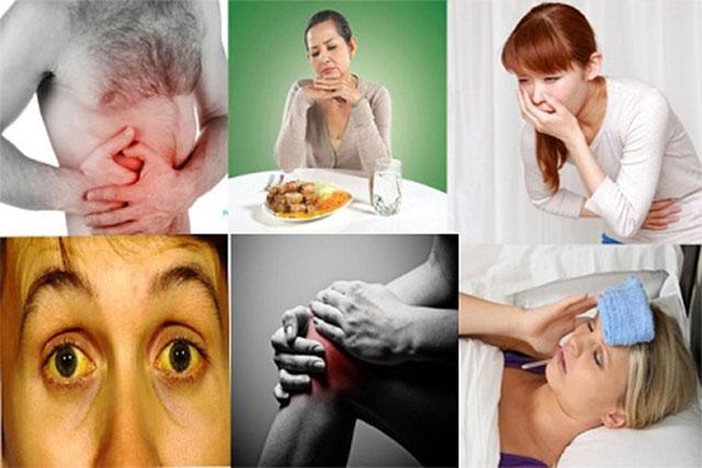 Một số triệu chứng thường gặp ở bệnh viêm gan mãn tính